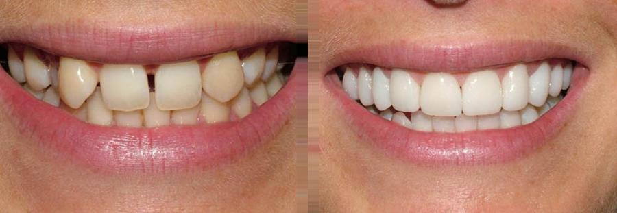 Dental Crowns York